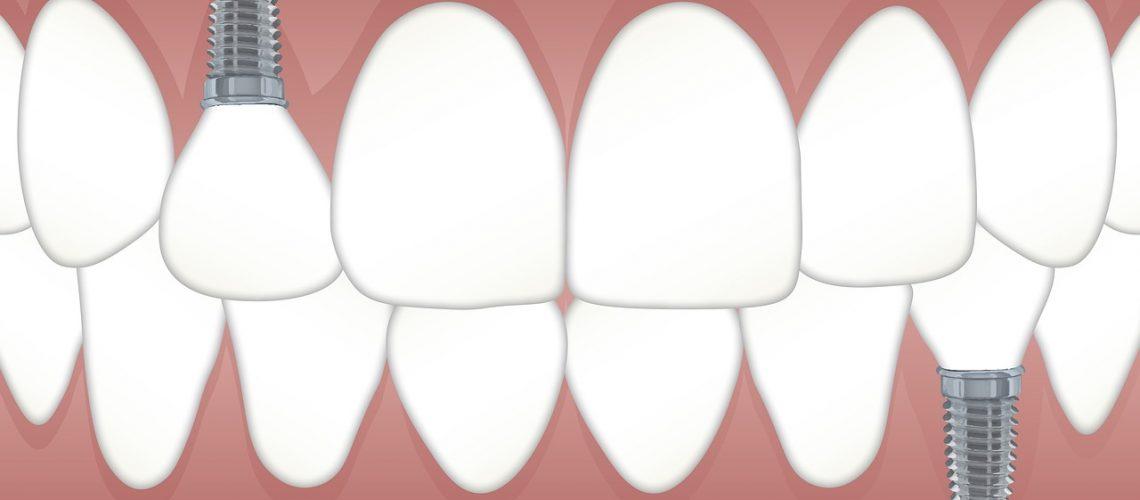 teeth-3597679_1280